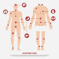 Acupuncture Point in Man Body Vector Illustration